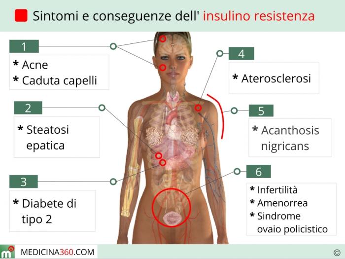 Sintomi insulino resistenza