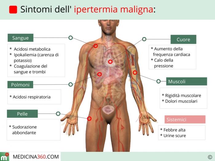 Sindrome maligna da neurolettici for Sintomi pressione alta