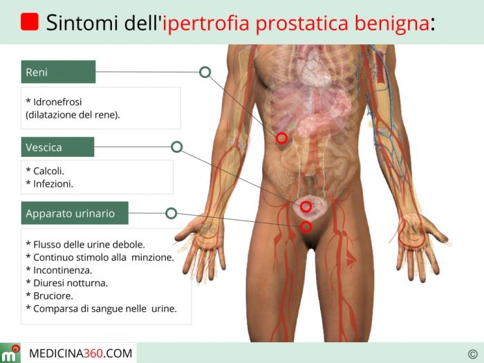 Risultati immagini per ipertrofia prostatica cure