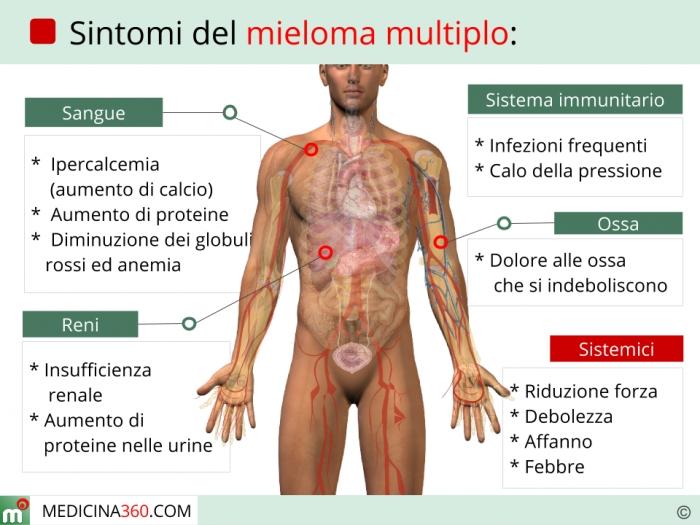 perdita di peso mieloma multiplo