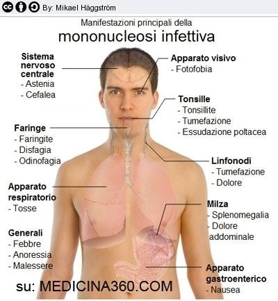 Mononucleosi infettiva sintomi