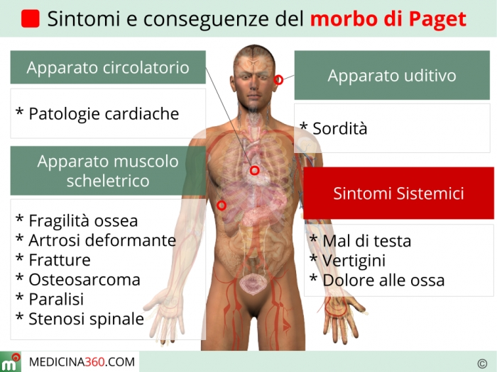 Sindrome di reperfusion in chirurgia vascolare