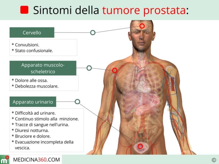 Sintomi del tumore alla prostata