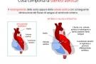 Stenosi aortica: sintomi, cause, diagnosi e terapia
