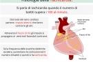 Tachicardia: ventricolare, atriale, sinusale o parossistica. Sintomi, cause e rimedi