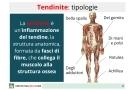 Tendinite: tipi, cause rimedi ed esercizi