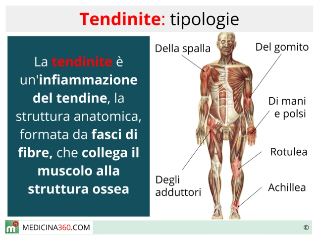 Tendinite tipi cause rimedi ed esercizi for Dolore a interno coscia