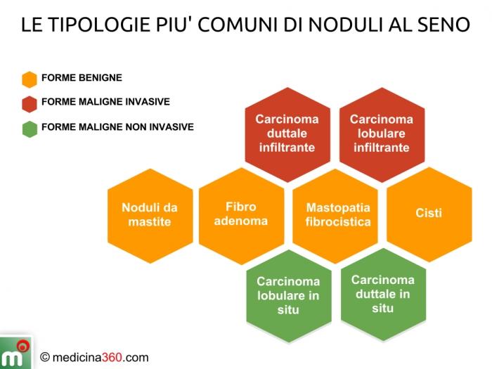 un nodulo tiroideo benigno può diventare maligno