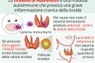 Tiroidite di hashimoto: sintomi, cause, dieta, cura e conseguenze