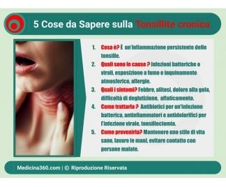 Tonsillite cronica: sintomi, cause, diagnosi e terapia