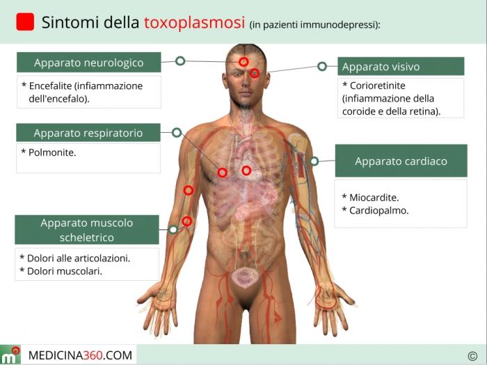 primi sintomi aids