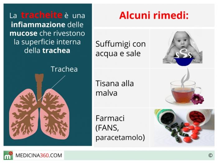 Tracheite cura farmaci e rimedi naturali for Orecchie a sventola rimedi naturali per adulti