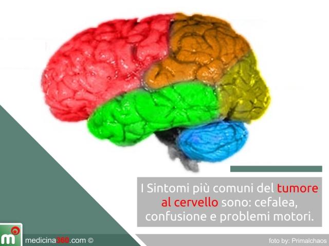 Tumore al cervello: sintomi, cure, cause, diagnosi e sopravvivenza