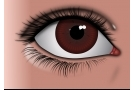 Tumore all'occhio: sintomi, cause, diagnosi ed intervento