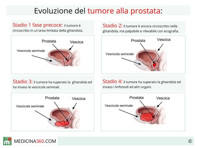 dolore alla prostata