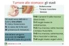 Tumore allo stomaco. sintomi, cause, terapia e sopravvivenza