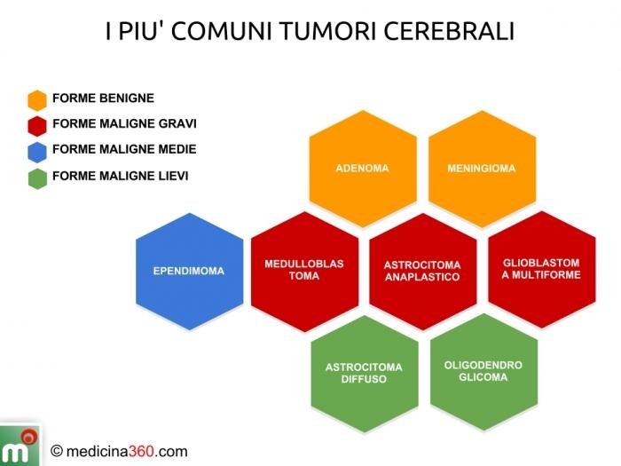 Tumori cerebrali comuni: forme benigne e maligne