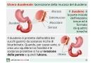 Ulcera duodenale: sintomi, cura, dieta e rischi (sanguinante o perforata)