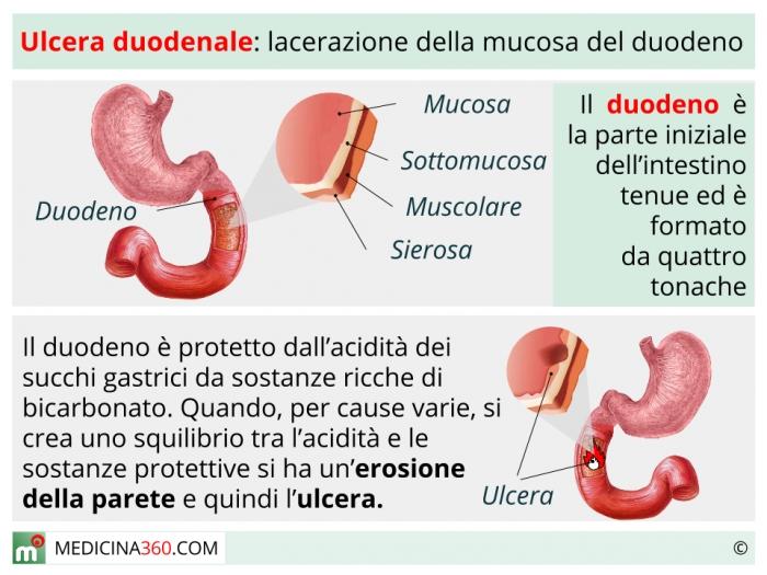alimentazione per ulcera peptica