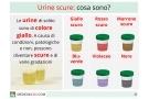 Urine scure: da cosa dipende? Cause fisiologiche e patologie