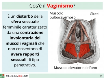Vaginismo: cos'�? Sintomi, cause e cure