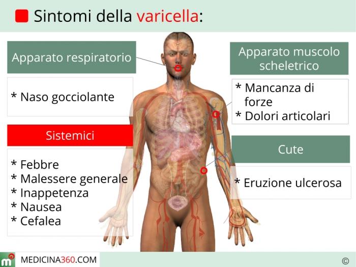 Sintomi della varicella