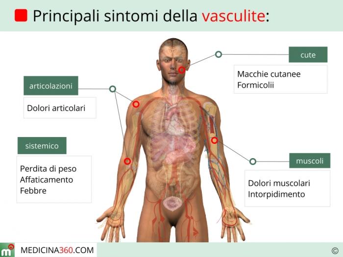 Sintomi vasculite