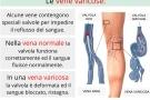 Vene varicose: sintomi, cause, rimedi, intervento e prevenzione delle varici