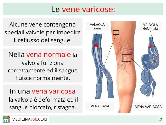 Su una gamba una vena nella forma di ammaccatura