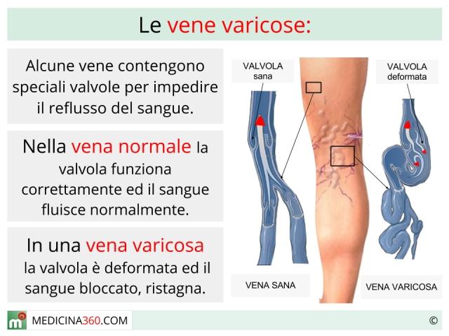Varicosity a gravidanza in un inguine
