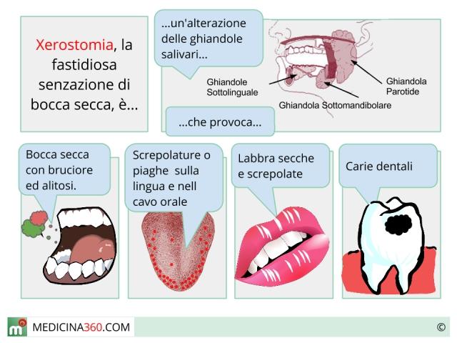 Xerostomia: cause, sintomi e rimedi per la bocca secca